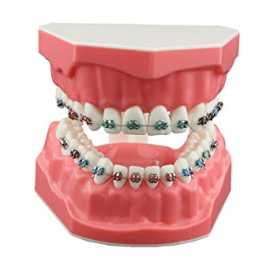 Dental Orthodontic Jaw Model