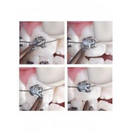 Leone Slide Low Friction Ligatures 60/pk
