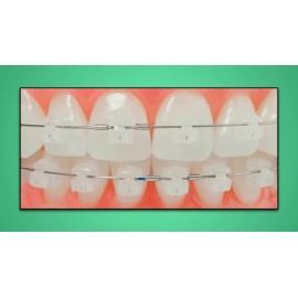 ECC IRISH Clear Self Ligating Bracket 022-5x5 U/L KIT